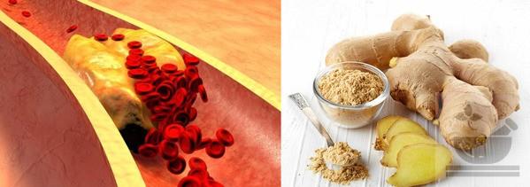 Имбирь против холестерина