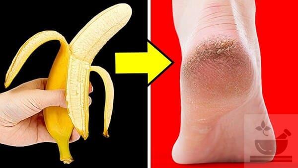 Банан для кожи ног